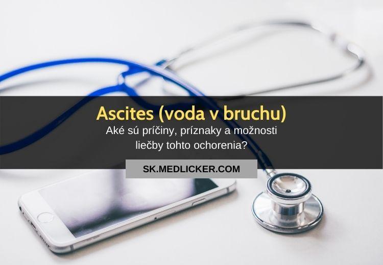 Ascites (voda v bruchu): všetko čo potrebujete vedieť