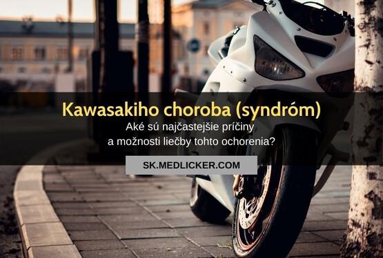 Kawasakiho choroba (syndróm): všetko čo potrebujete vedieť!