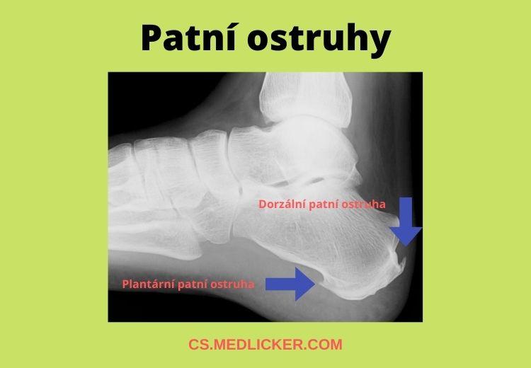 Plantární a dorzální patní ostruha (plantární fasciitida)