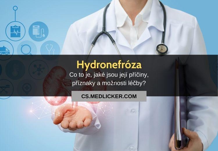 Hydronefróza: vše co potřebujete vědět