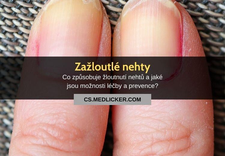 Nejčastější příčiny zažloutlých nehtů a jak se tohoto problému zbavit?
