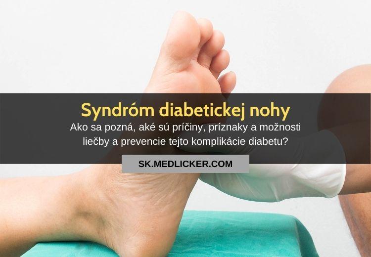 Syndróm diabetickej nohy: všetko čo potrebujete vedieť