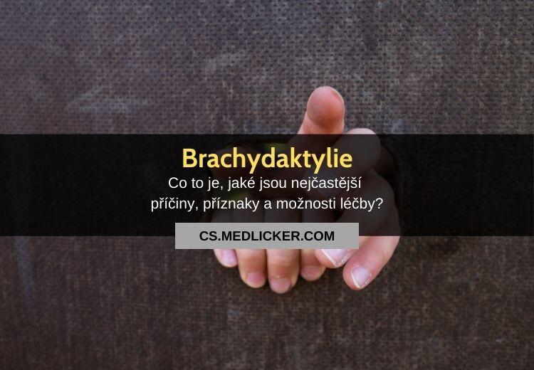 Abnormálně krátké prsty (brachydaktylie): vše co potřebujete vědět