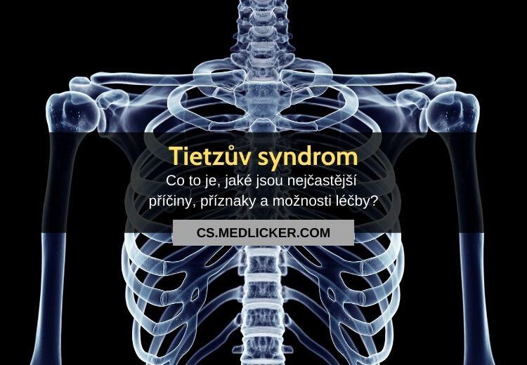 Tietzův syndrom: vše co potřebujete vědět