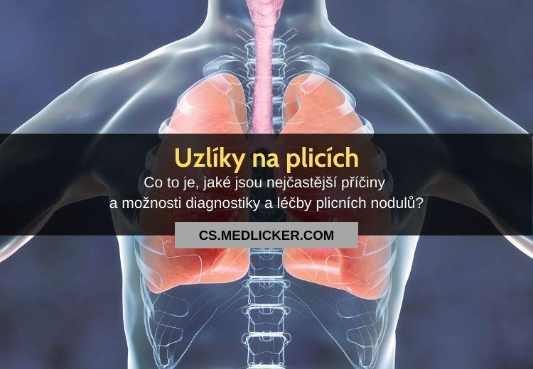 Uzlíky na plicích: vše co potřebujete vědět