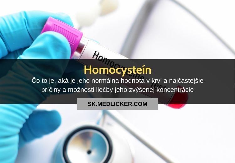 Homocysteín: hodnoty v krvi, príčiny a liečba hyperhomocysteinémie