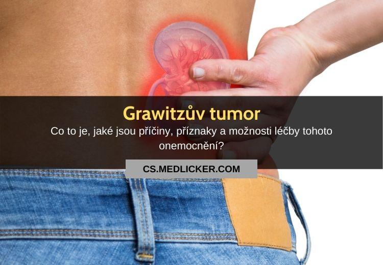 Grawitzův tumor (renální karcinom): vše co potřebujete vědět!