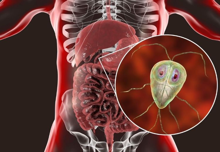 Giardia intestinalis (lamblie střevní) je původcem parazitární střevní infekce, která se projevuje vodnatými průjmy