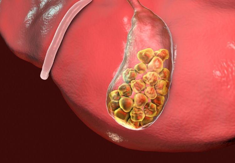 Žlčové kamene sú častou príčinou bolesti žlčníka