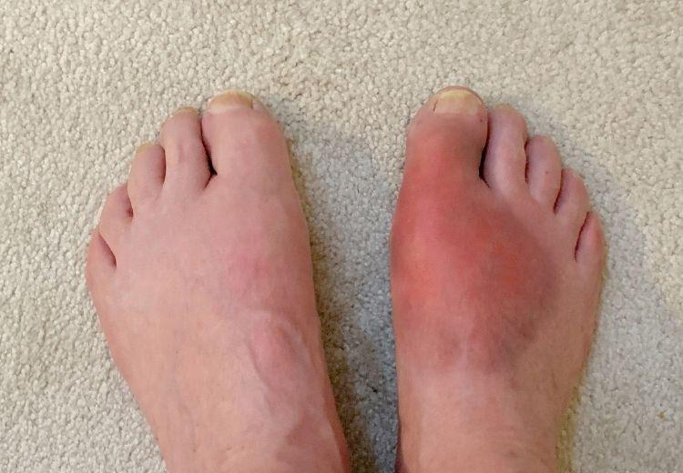 Dna je častou příčinou bolesti palce u nohy. Projevuje se otokem, zčervenáním a bolestí postiženého palce.