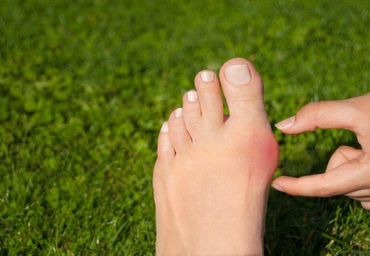 Vbočený palec (hallux valgus) se projevuje bolestí, otlakem a narušením stability přednoží.