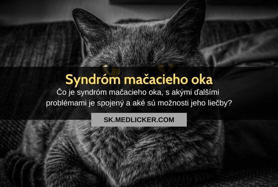 Syndróm mačacích očí? Všetko čo potrebujete vedieť!