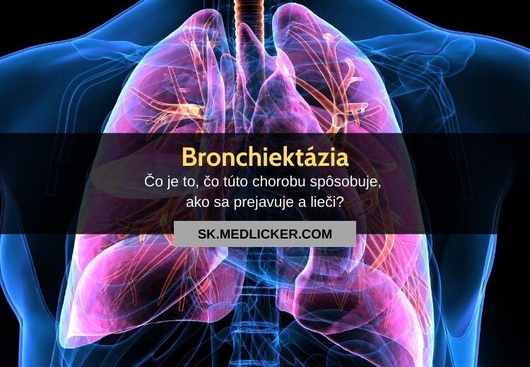 Čo je bronchiektázia, aké sú jej príznaky a možnosti liečby?