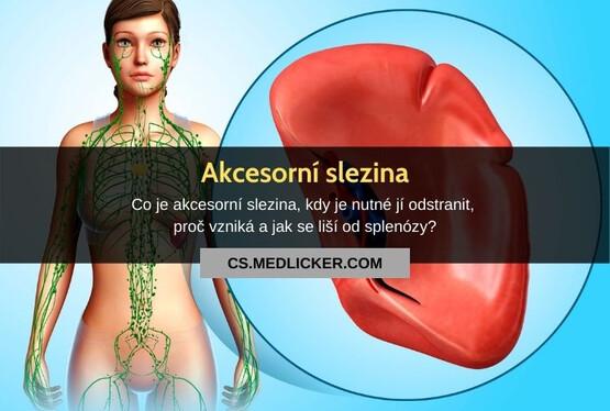 Co je akcesorní slezina?