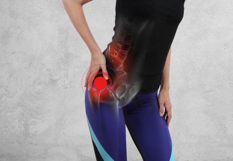 La sciatique est l'une des causes courantes de la douleur à la hanche lors de la marche