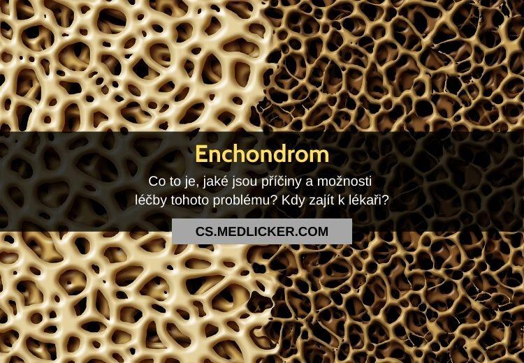 Co je enchondrom? Vše co potřebujete vědět!