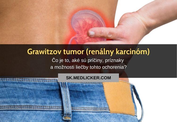 Grawitzov tumor (renálny karcinóm): všetko čo potrebujete vedieť!
