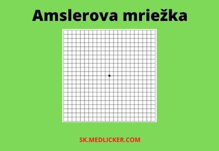 Amslerova mriežka