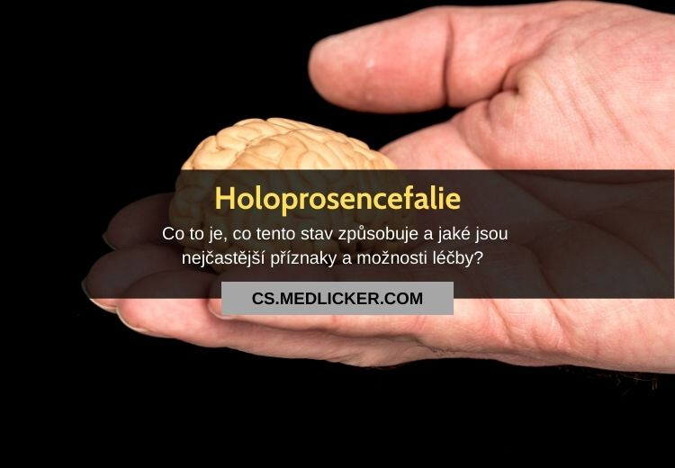 Holoprosencefalie: vše co potřebujete vědět