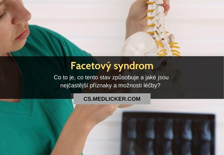 Facetový syndrom: vše co potřebujete vědět