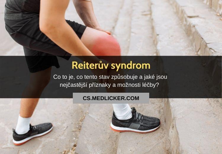 Reiterův syndrom (reaktivní artritida): vše co potřebujete vědět!
