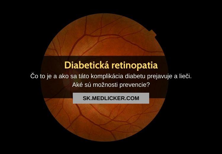 Diabetická retinopatia: všetko čo potrebujete vedieť!