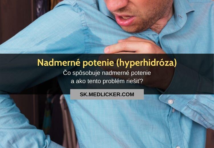 Nadmerné potenie (hyperhidróza): všetko čo potrebujete vedieť