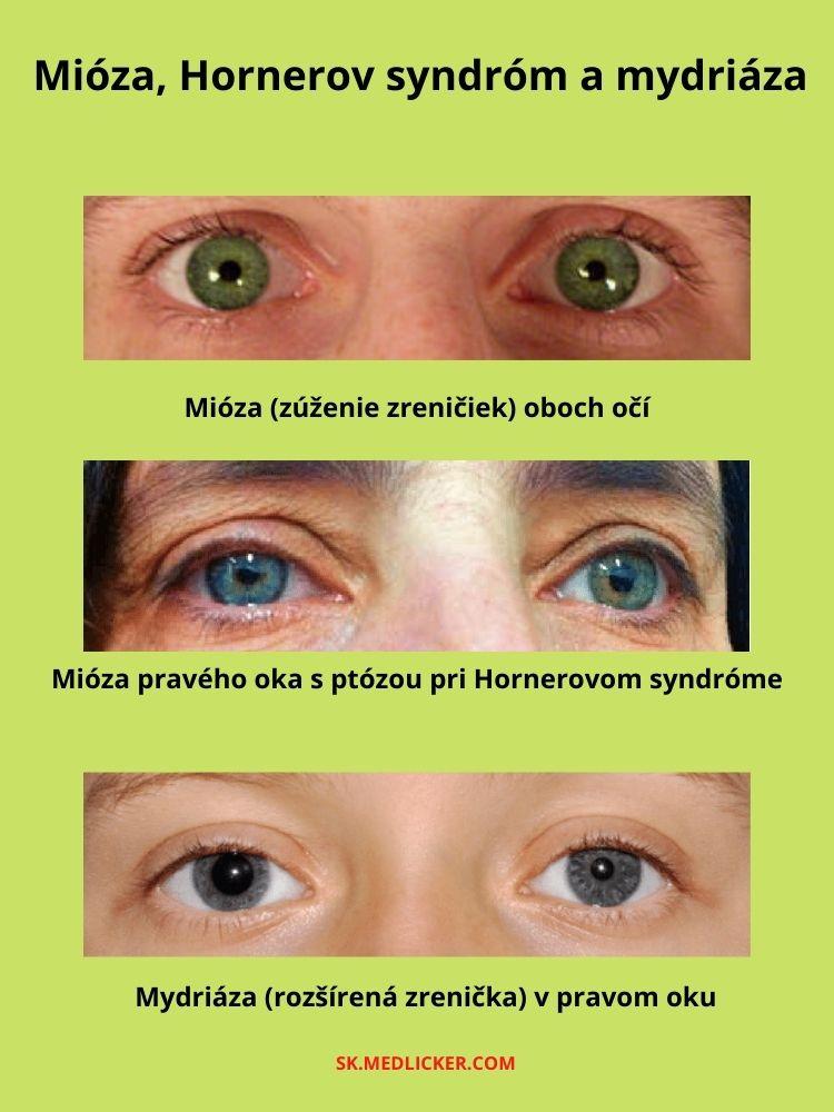Hornerov syndróm, zúženie a rozšírenie zreničiek (mióza a mydriáza)