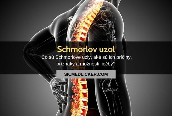 Čo sú Schmorlove uzly? Všetko čo potrebujete vedieť!