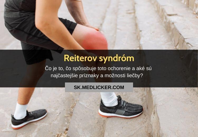 Reiterov syndróm (reaktívna artritída): všetko, čo potrebujete vedieť!