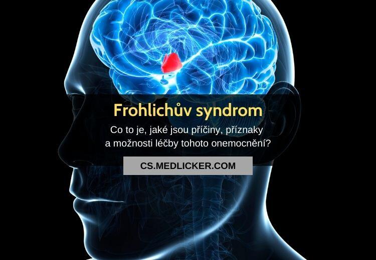 Frohlichův syndrom (adiposogenitální dystrofie): vše co potřebujete vědět