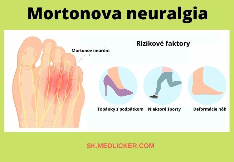 Rizikovými faktormi pre vznik Mortonovej neuralgie sú nevhodné topánky, deformácie prednožia a niektoré športové aktivity.