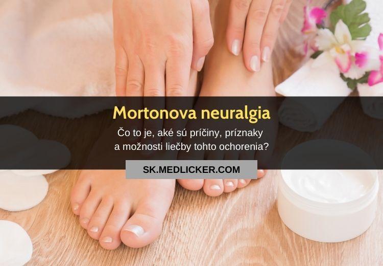 Mortonova neuralgia: všetko, čo potrebujete vedieť