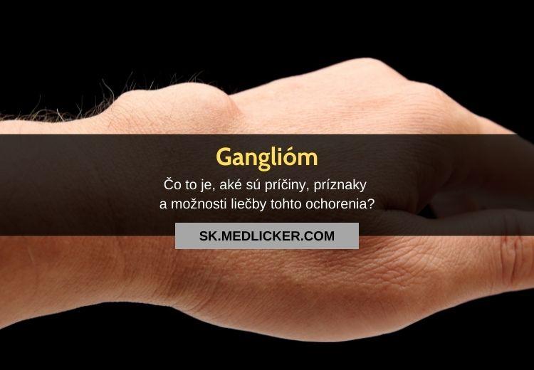 Čo je ganglióm, prečo sa vytvára a ako ho odstrániť?