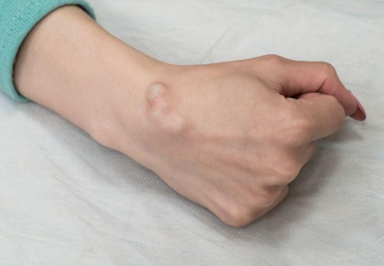 Ganglióm (ganglión) zápästia