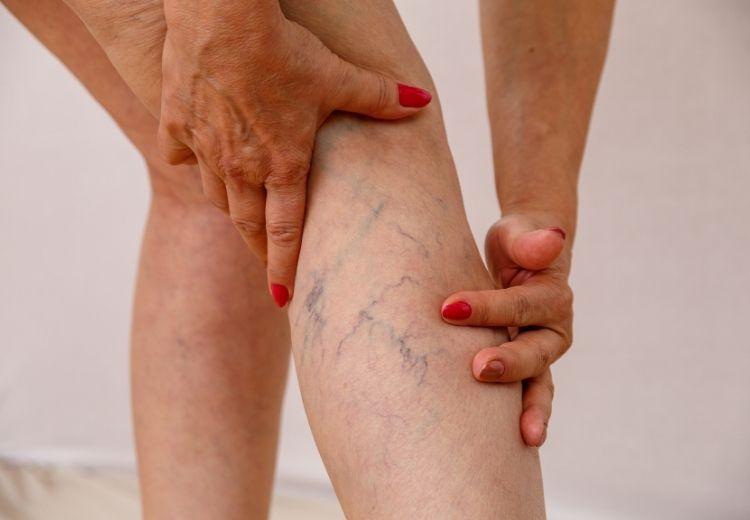 Chronická žilní nedostatečnost, ischemická choroba dolních končetin, přetrénování a křečové žíly jsou častou příčinou pocitu těžkých nohou