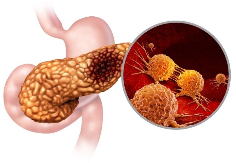 Gastrinom je nádor slinivky, který je častou příčinou hypergastrinémie i Zollingerova-Ellisonova syndromu