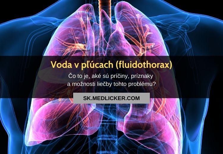 Fluidothorax (voda v pľúcach, pleurálny výpotok): všetko, čo potrebujete vedieť