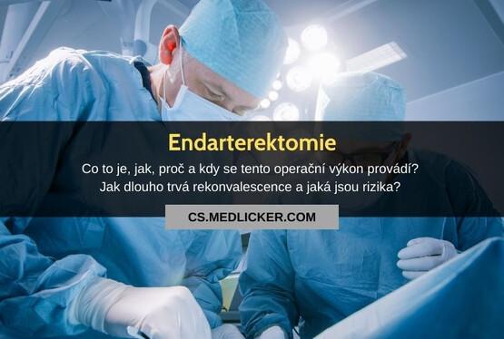 Endarterektomie: vše co potřebujete vědět