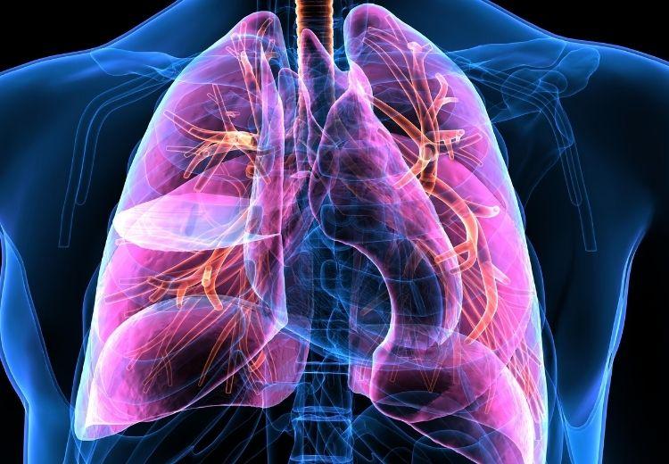 Při endarterektomii plicnice (PEA) se odstraňují krevní sraženiny (emboly) z plicních tepen při chronické tromboembolizační plicní hypertenzi