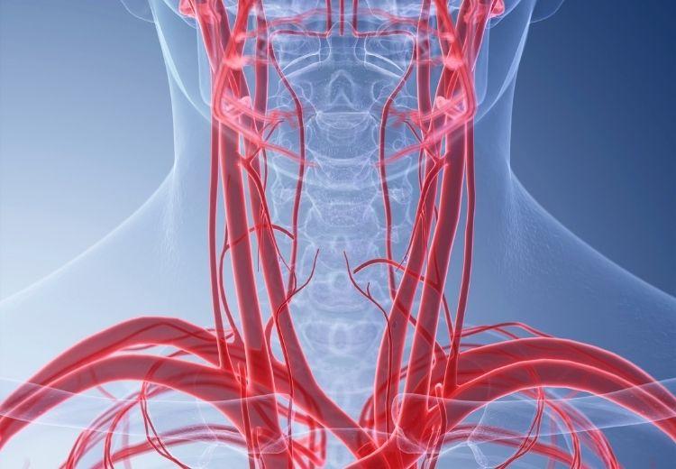 Při karotické endarterektomii se odstraňují aterosklerotické pláty ze zúžené vnitřní krkavice