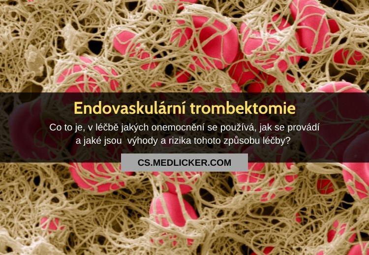 Co je endovaskulární trombektomie a jaké nemoci pomáhá léčit?