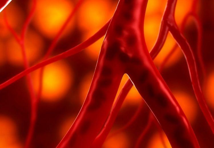 Endovaskulární trombektomii lze provádět jen na některých mozkových tepnách a jen do určité doby po výskytu prvních příznaků ischémie
