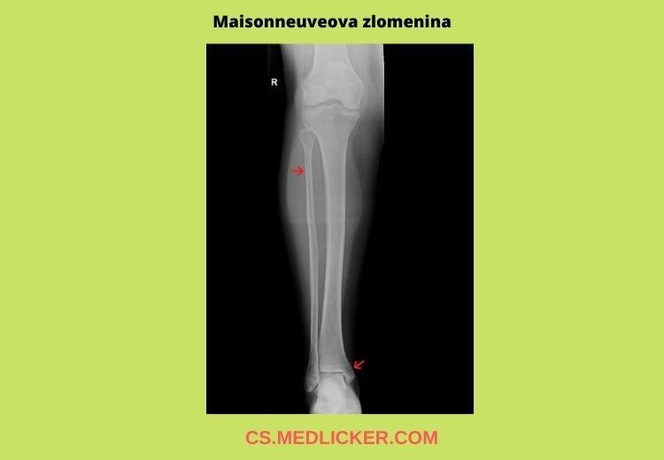 Maisonneuveova zlomenina je nestabilní fraktura kotníku spojená s poraněním deltového vazu, porušením syndesmózy, roztržením intraoseální membrány a vysokou frakturou fibuly.