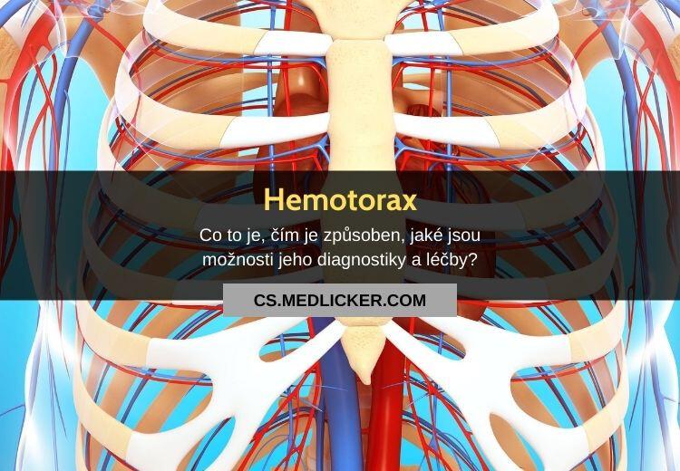 Hemotorax (hemothorax): vše co potřebujete vědět
