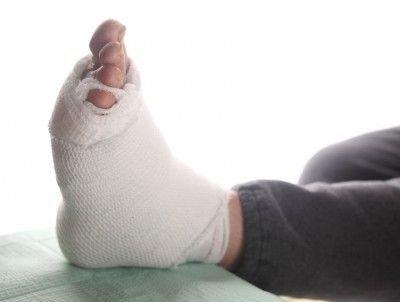 Diabetická noha: příčiny, prevence a léčba