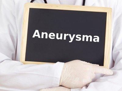 Aneuryzma: delenie, diagnostika, rizikové faktory a liečba