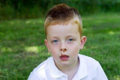 Impetigo: příčiny, příznaky, diagnostika a léčba