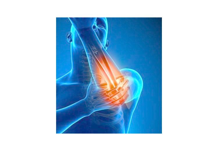 Artróza: příčiny, příznaky, diagnostika a léčba