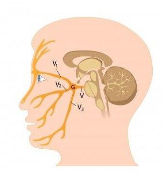 Zanet trojklanného nervu priznaky